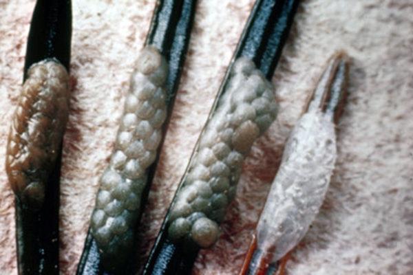 spruce budworm eggs on needles